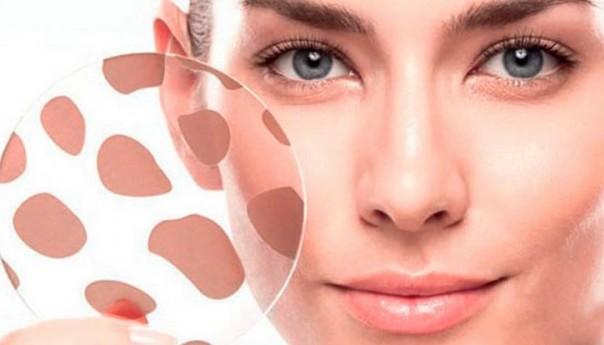 Современная борьба с пигментными пятнами и отбеливание кожи.