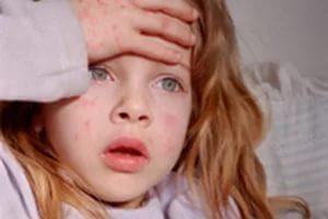 Аллергическая реакция на коже ребенка.