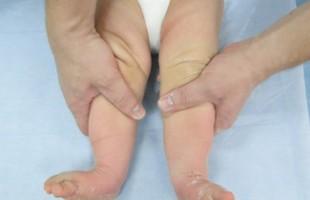 Врождённая косолапость: эффективные методы лечения.