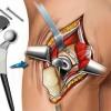 Эндопротезирование тазобедренного сустава: периоды и способы реабилитации.